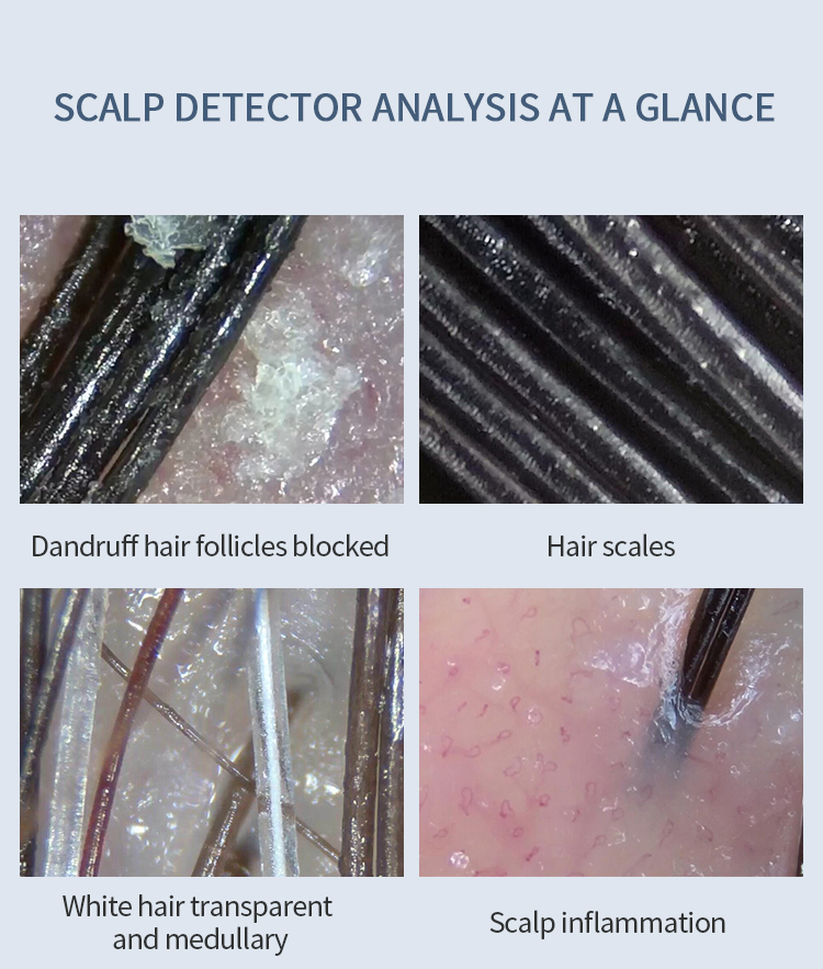 Wireless Digital Scalp Detector can detect hair loss hair split scalp inflammation