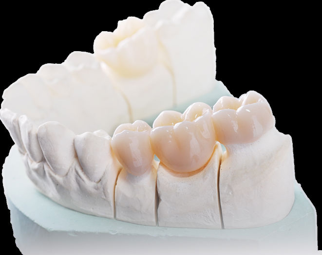 hot-selling dental material used in Sirona system