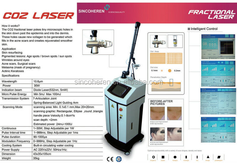 2016 new modell 755nm Fractional Laser Remove Surgical Scars Actinic Keratoses Acne Scars co2 extraction machine