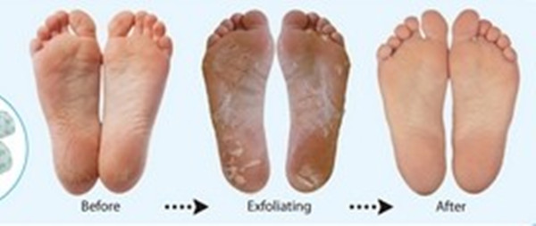 xq 315 Enhanced exfoliating Foot pack, peeling foot skin