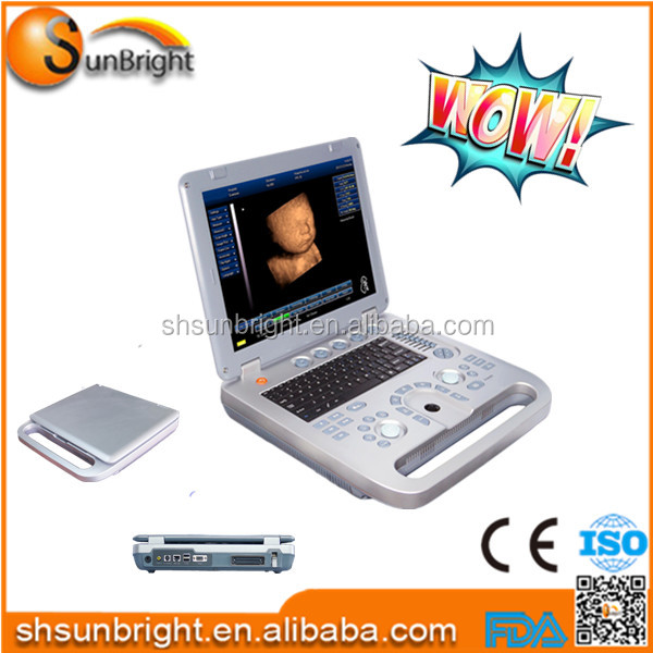 2016 Super quality laptop ultrasound scanner/portable ultrasound machine with battery and USB ports