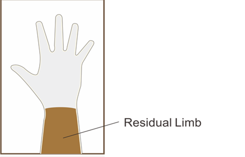 Silicone  Glove for adult , amputee