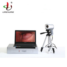 Full HD video colposcope for vagina Portable Electronic Colposcopy High Resolution Digital Colposcope