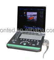 Full digital portable color doppler 3D ultrasound machine automatic ultrasonic testing equipment