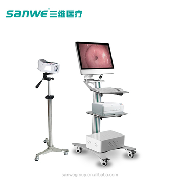 SW-3304 SANWE Medical Colposcope, Colposcope with Software, Endoscope ,Vaginal Colposcope