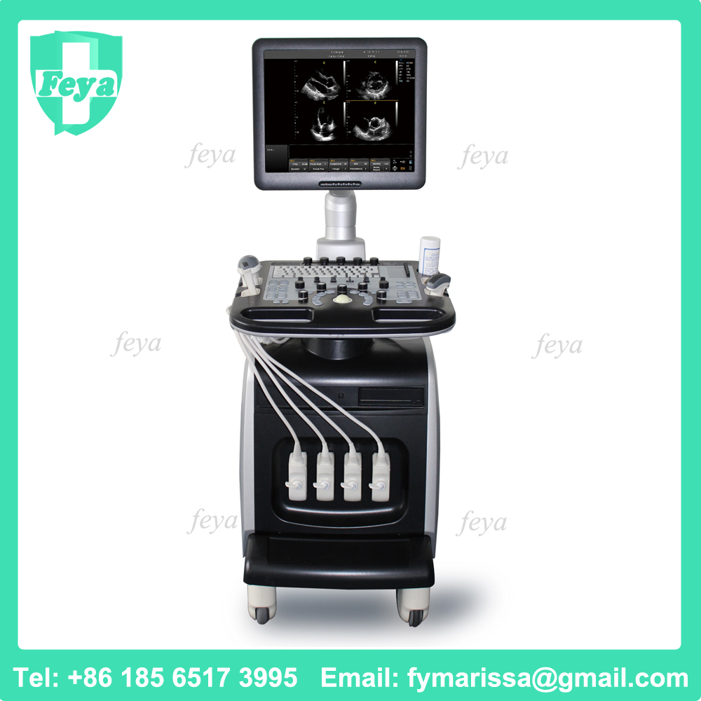 FY-I8 Price Medical Cardiac Ultrasound Equipment Portable