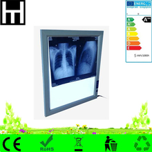 ultra thin adjustable brightness auto-induction single double led medical x-ray film viewer