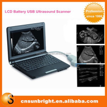 Laptop Digital Ultrasound Machine/Mini Battery Ultrasound Scanner