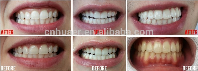 CE & FDA Approved Private Label Activated Charcoal Teeth Whitening Strips 3D Advanced Teeth Whitening Strips