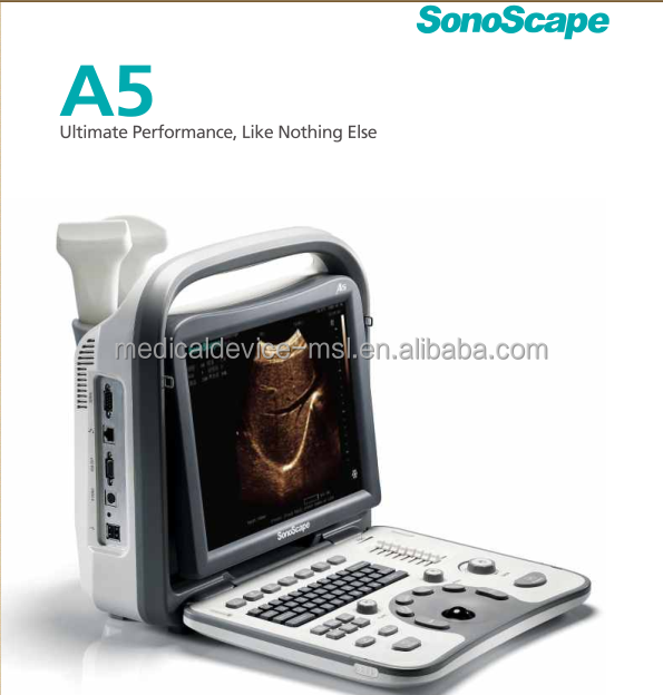 2017 New design A5 Sonoscape ultrasound with two transducer