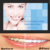 Dental Care Bleaching Gel Teeth Whitening Strips