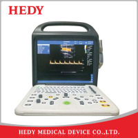 HEDY Portable Latop Color Doppler Ultrasound