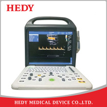 HEDY Portable Latop Color Doppler Ultrasound System Machine Price with CE