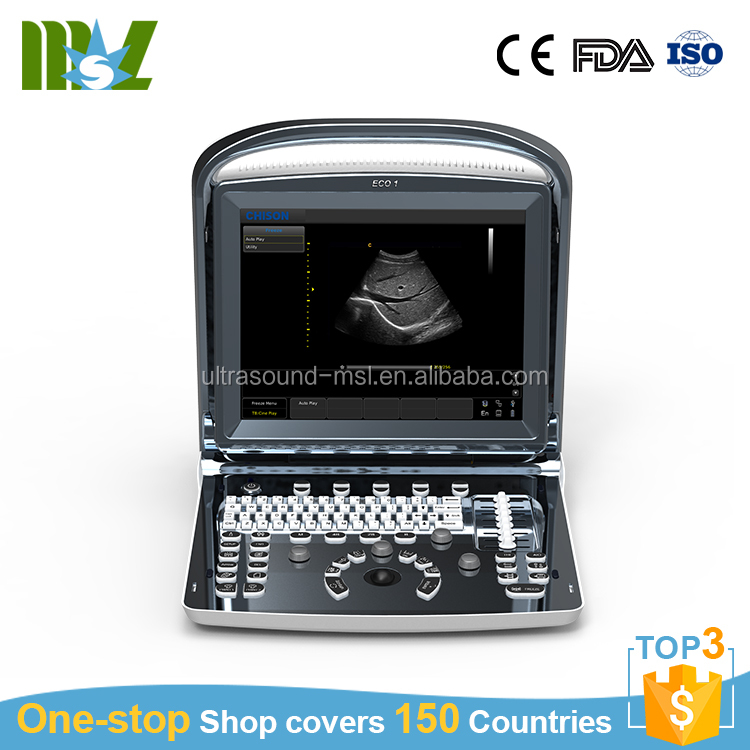 CE Approved ultrasound best price chison EC01 cheap ultrasound scanner