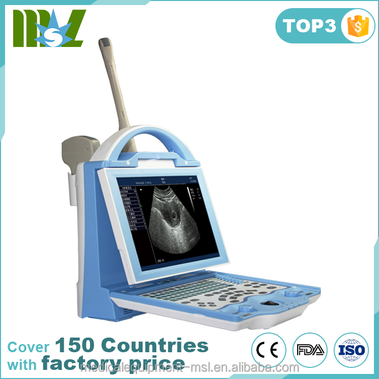MSLPU27A laptop ultrasound scanner/equine ultrasound/digital ultrasound machine