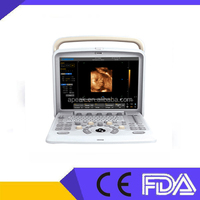 Chison Q5 Digital Portable Ultrasound FDA CE approved