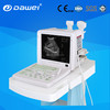 Top level best selling time 3d 4d portable ultrasound