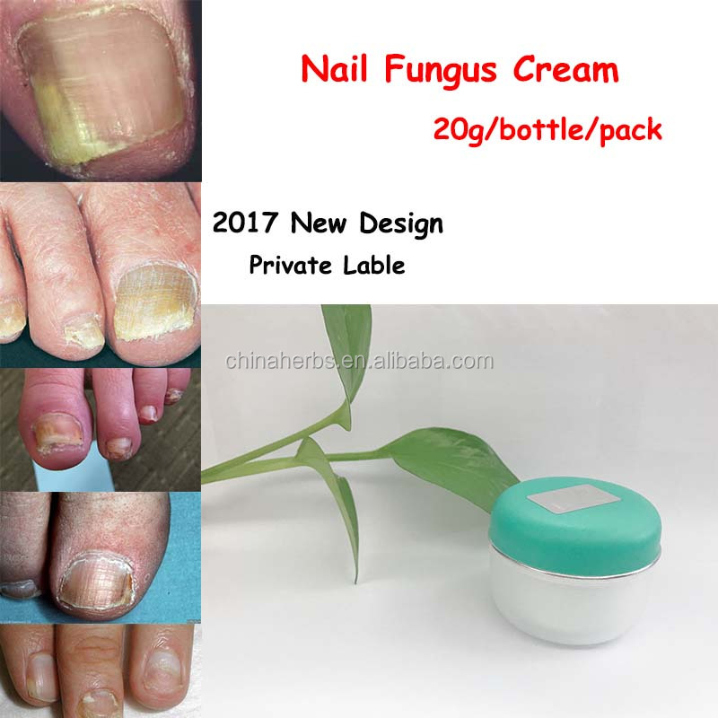 Fungal Nail Infection Fungual Infection Treatment