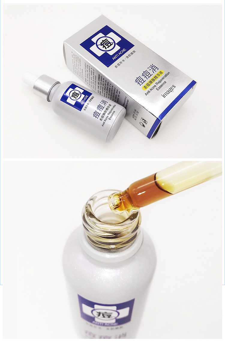 OEM blemish clearing herbal acne treatment serum essence for face care