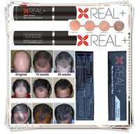 One week hair rebounding REAL PLUS 10ml hair growth spray anti hair loss treatment prevent balding