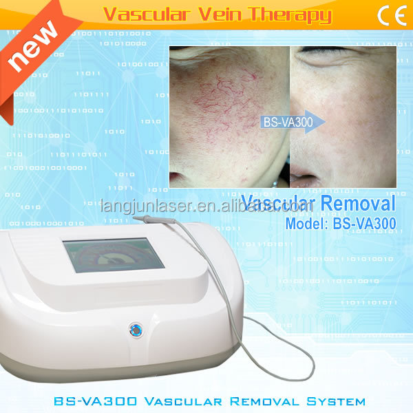 Good Quality Portable HF Vascular removal machine no pigmentation left
