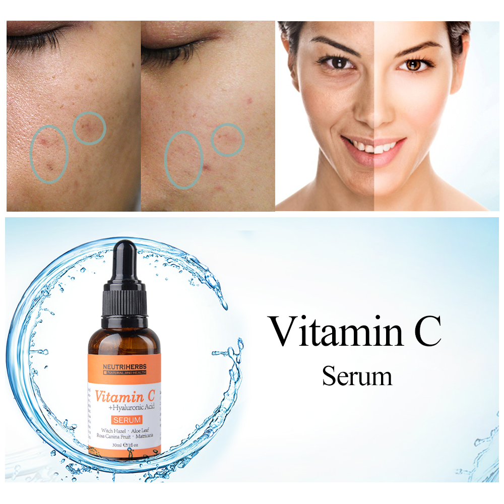 Best Price Natural Skin Care Acne Treatment 20% Face Whitening Pure Vitamin C Serum For Women Skin Care