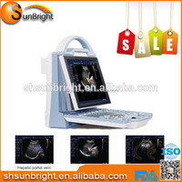 SUN-902X Medical color ultrasound scanner liver portable ultrasound unit kidney ultrasound color doppler