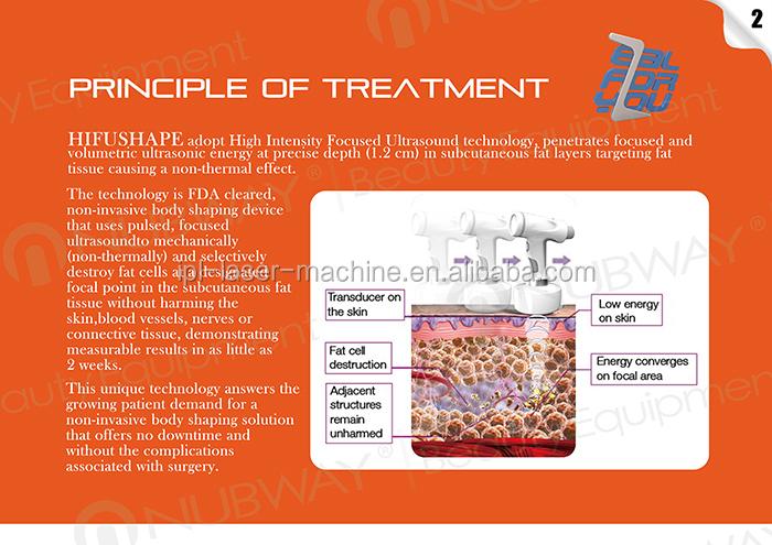 Оптовая продажа с фабрики HIFU Корея нехирургических тела для похудения HIFU liposonix машина для жира