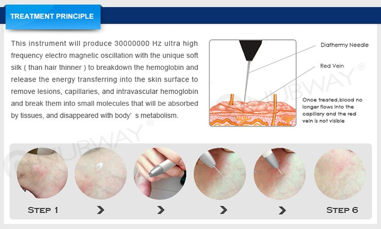 High frequency 30MHz vascular removal spider vein removal machine