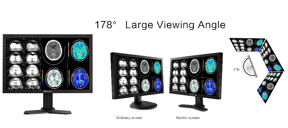 MD42C - 30'' 4MP Color and grayscale image medical monitor