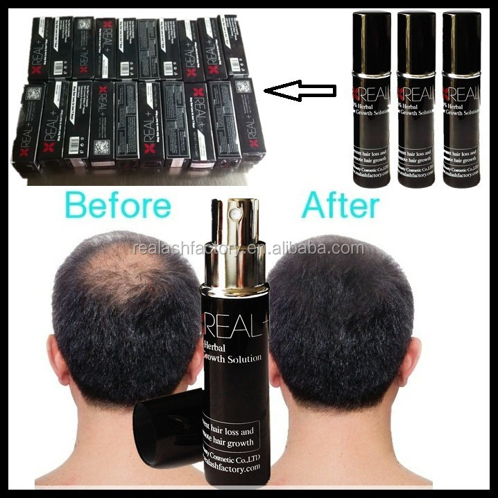 Pure herbal no side effect anti hair loss bald head treatment REAL+ hair growth spray