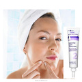 Face anti acne pimple whitening cream