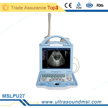 equine ultrasound machine price