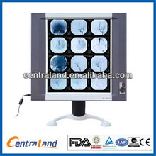Single TFT LCD X-ray film viewer