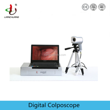 Portable digital colposcope with sony camera ccd