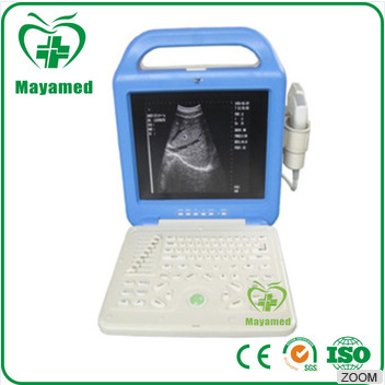 China Competitive price and excellent quality High stability black and white portable ultrasound scanner for pregnancy