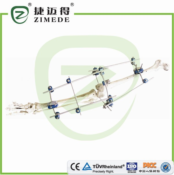 Knee Joint External Fixator (Styrker Type) fractures and broken bones Foot and Ankle External Fixation Devices China