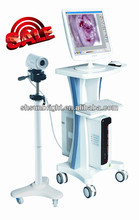 portable video colposcope