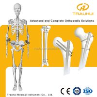 Intramedullary Interlocking Nail Orthopedic Medical Implant for femur tibia humeral fracture
