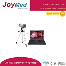 Portable laptop digital video electronic colposcope/colposcopy with 800,000pixels