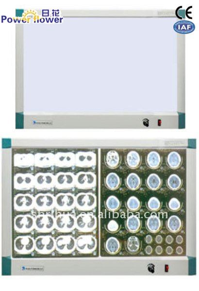 LCD X-ray viewing box made in china