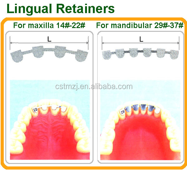 High Quality Dental Stainless Steel Teeth Lingual Retainers for Sale