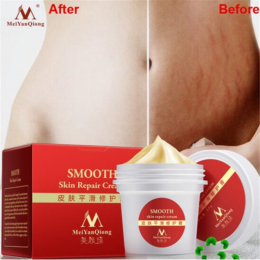 High Quality Smooth Skin <strong>Cream</strong> For Stretch Marks Scar Removal To Maternity Skin Repair Body <strong>Cream</strong> Remove Scar Care Postpartum