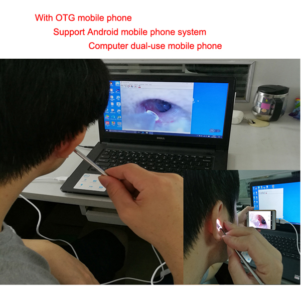 Medical 4.9mm Lens for Ear Nose for OTG Android Phone PC driver usb Borescope Inspection Otoscope nasal medical Endoscope Camera
