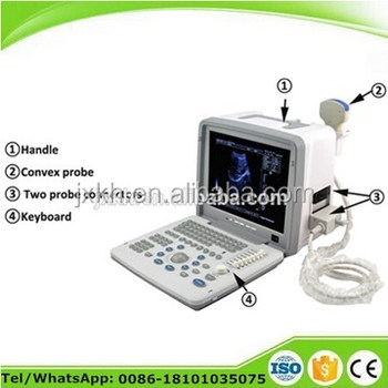 CE approved Portable Ultrasound Scanner with 3.5Mhz multi-frequency convex probe Diagnostic ultrasound