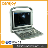 CE ISO cheap 4D Portable Color Doppler Ultrasound Machine/ ultrasound scanner