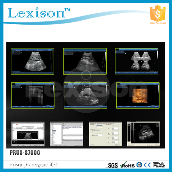 Professional USB Ultrasound Probe Digital Laptop Ultrasound Scanner