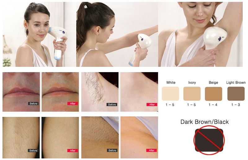 elysee hair removal system instructions