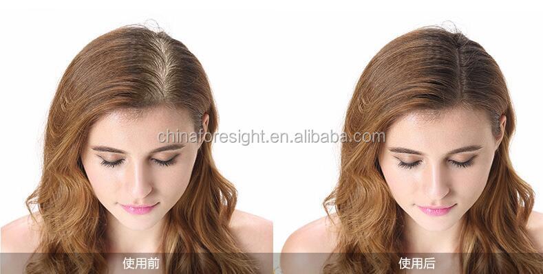 2017 hot selling hair fibers to cure receding hairline50641.jpg