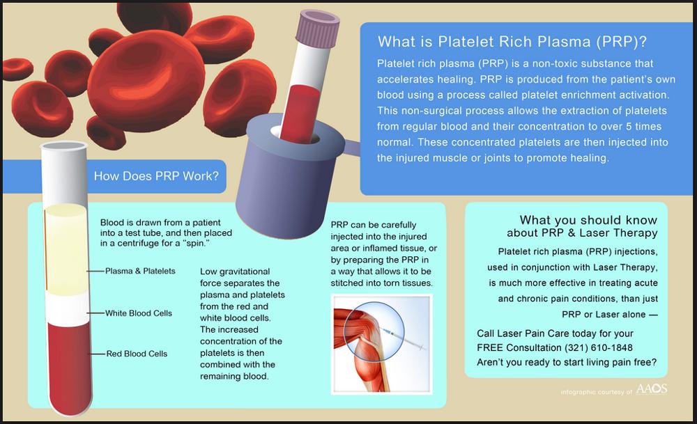 the use of plasma treatment in Clinical plasma medicine understands plasma medicine as the clinical use of physical plasma for therapeutic purposesplasma medicine is an innovative.